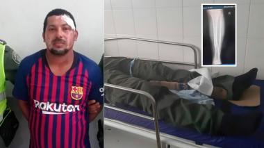 Lo capturan por fracturarle la pierna a policía que participaba en persecución
