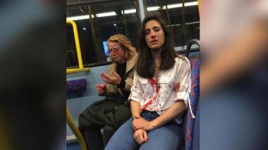 Una pareja de lesbianas sufre un ataque homofóbico en un autobús de Londres