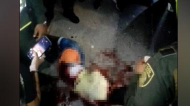 El presunto sicario, quien permanece sin identificar, murió en una clínica por las heridas que sufrió.