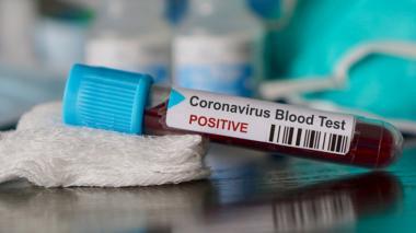 Muestra de sangre positiva de coronavirus.