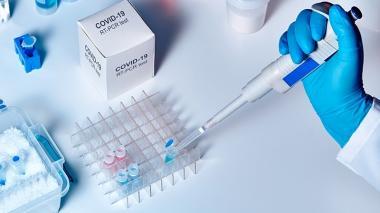 Llamado de atención a las EPS en Lorica por demoras en pruebas COVID-19