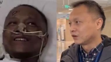 Reaparece médico chino cuya piel se volvió negra por tratamiento contra Covid