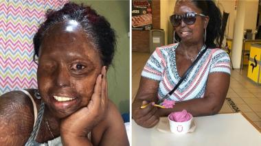 Mujer desfigurada por ataque con ácido se convierte en 'influencer'