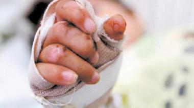 Niño de 12 años, primer quemado con pólvora en Cesar