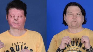 Un hospital de EE.UU. anuncia el primer trasplante exitoso de cara y manos