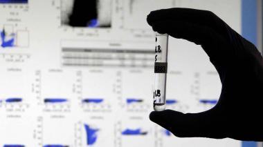Test detecta anticuerpos covid-19 invisibles