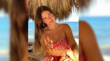 Taliana Vargas reveló el avance del vitíligo en su piel