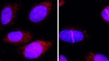 Una proteína que ayuda a reparar el ADN podría potenciar la quimioterapia