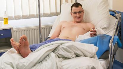 Realizan el primer trasplante de mano a una personas que nació sin ella