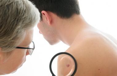 Médico examinando una mancha anormal en la piel de un paciente.