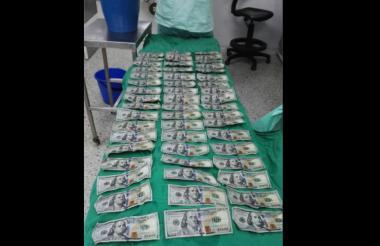 Los billetes que le sustrajeron a la mujer de su zona abdominal.
