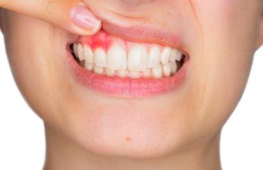 Una mujer señala con los dedos una infección en sus encías.