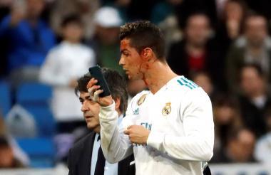 Cristiano Ronaldo observa, con preocupación y la ayuda de un celular, su corte y sangrado en el rostro.