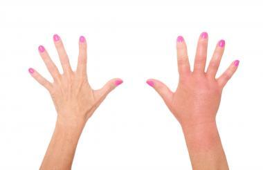 Evite el calor o frío extremo en la zona afectada, además de cortes  o cualquier tipo de daño en la piel.