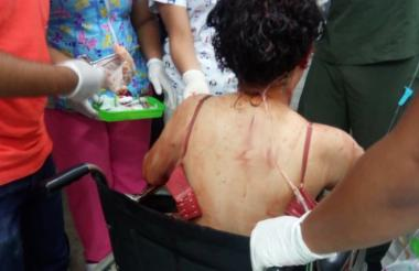 La víctima siendo atendida en un centro médico.