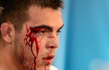Cristian Anguiano con el rostro ensangrentado.