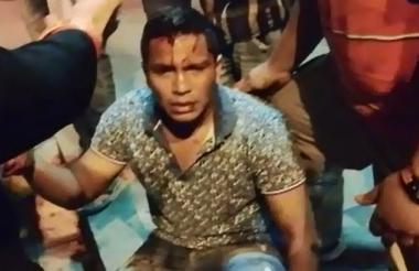 Anderson Pablo Robles Viera, agredido por los policías.