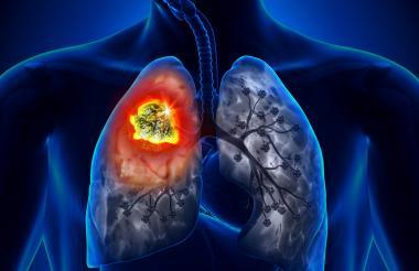 Expertos señalan que el 36% de los casos de cáncer de pulmón no tienen relación con el consumo de tabaco.