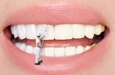 Hipotéticamente, según odontólogos expertos, el diseño de sonrisa debe manejar diferentes especialidades de la odontología como la ortodoncia, la periodoncia y la rehabilitación oral.
