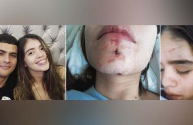 Jessica Barrios fue hospitalizada por tres días tras sufrir fracturas en su mandíbula y mano derecha.