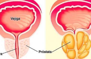 Algunos cánceres de próstata no son agresivos y no crecen lo suficiente como para suponer un riesgo.