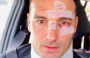 Así quedó el rostro de Lionel Scaloni luego del accidente que sufrió en Mallorca, España.