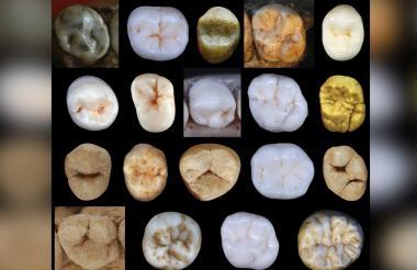 Muestra de dientes incluidas en el estudio del University College de Londres.