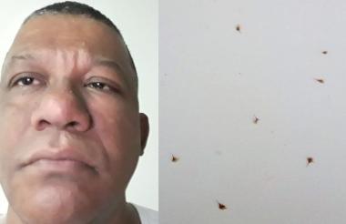 Reynaldo Sarmiento Espinoza víctima de ataque por parte de las abejas africanizadas. Al lado algunos de los aguijones que le extrajeron.