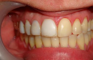 """Enrique Jadad enfatiza que """"la Odontología es mucho más que implantes, resinas y blanqueamientos""""."""
