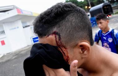 Un joven con una herida en la cabeza, tras la presentación del delantero de Junior.