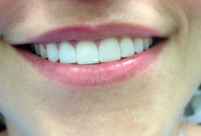 Diseño de sonrisa realizado a una mujer adaptado a sus necesidades.