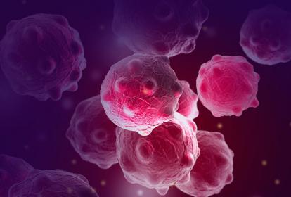 Ilustración de células cancerígenas en el cuerpo humano.