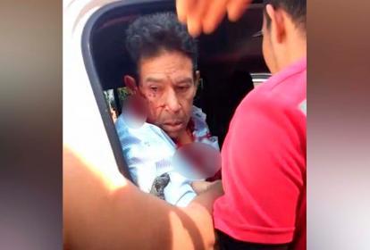El ganadero Celso Castro Gnecco cuando era subido a un vehículo para ser trasladado a una clínica.