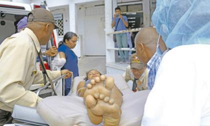 Dos familiares mueren intoxicados con monóxido de carbono en Berrugas, San Onofre