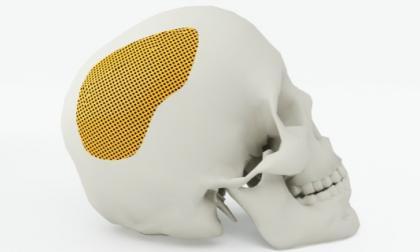 Representación 3D de un cráneo con un parche de colágeno, ideal para cicatrización.