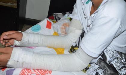 Niño se fractura los brazos por una descarga eléctrica