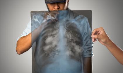 Hombre fumando con pulmón de rayos x.