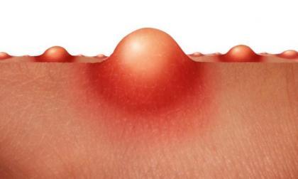 Ilustración de la piel de un paciente con la enfermedad.