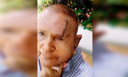 Agreden con tranca y puñal a anciano por robarle $30 mil en Los Nogales
