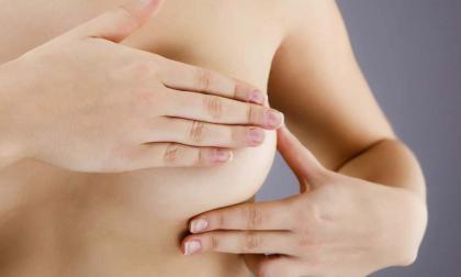 Corte ordena garantizar reconstrucción de senos por cáncer de mama
