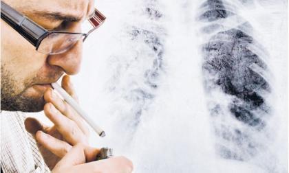 Fumadores, blancos fáciles de la COVID-19