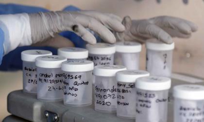 Recipientes de muestras tomadas a personas con sospecha de tener la enfermedad COVID-19.