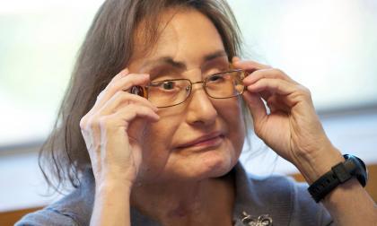 Muere mujer que recibió primer trasplante facial en EE.UU