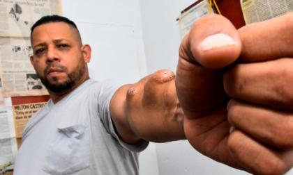 """""""Me rehúso a morir en estas condiciones"""": Milton Castro"""