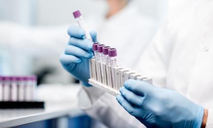 Fenofibrato para Covid-19: aún sin resultados de ensayos clínicos