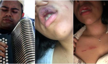 Denuncian a acordeonero por brutal golpiza a su novia