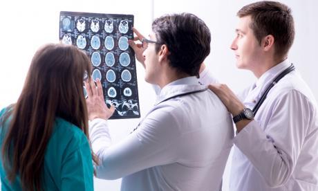 La enfermedad puede afectar la motricidad y la memoria.