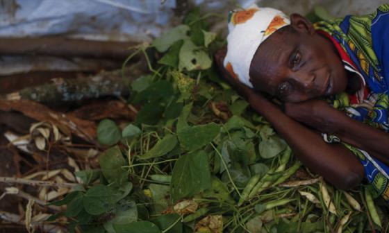 Alertan que epidemia de cólera en Tanzania seguirá creciendo de forma exponencial