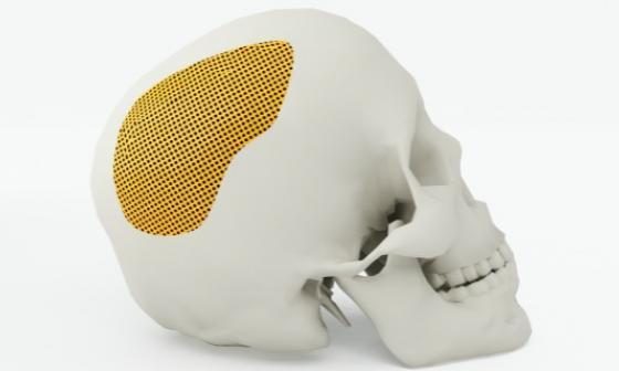 El colágeno, la pieza clave en nuevas técnicas de neurocirugía