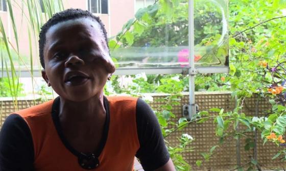 ONG le devuelve la sonrisa a personas desfiguradas por el noma en Costa de Marfil